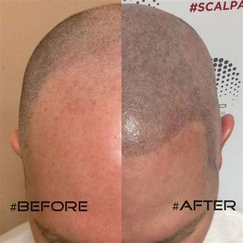 scalp micropigmentation for hair scalp micropigmentation hair tattoos in phoenix