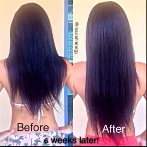 before snd after picture of hair growth in eonen folic acid hair growth does it help how to use results