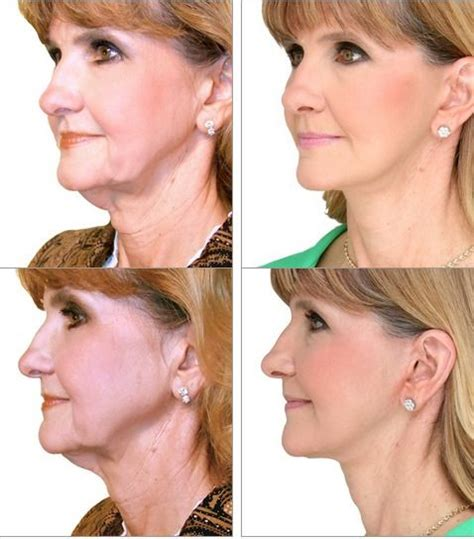 women with turkey neck pictures get rid of turkey neck linda sue age 60 had the
