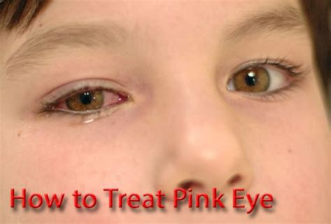 how to treat pink eye with photos hubpages