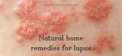 Home Remedies For Lupus by Lupus Treatment Itchy Image Mag
