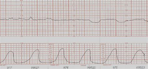 pattern of heart contraction what causes late decelerations related keywords