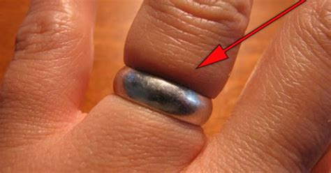 here s the easiest and best way to remove a ring that is