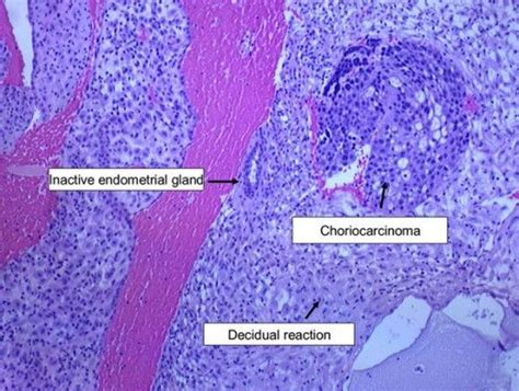 news choriocarcinoma 1000 ideas about endometrial biopsy on pinterest 1 am
