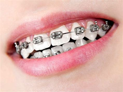 black color braces silver black braces colors braces black