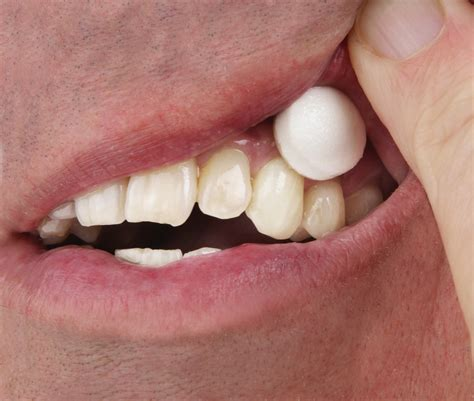 dental testimonials cure tooth decay seniors are at a higher risk for tooth decay but salivary