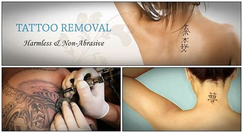 easy tattoo removal at home 28 natural ways on how to remove tattoos at home fast page 8