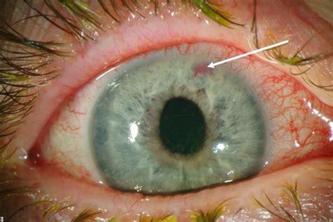 She Eye No 2 gr 248 nn st 230 r alt om linser