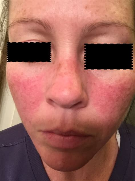 malar rash or rosacea other symptoms sound like lupus