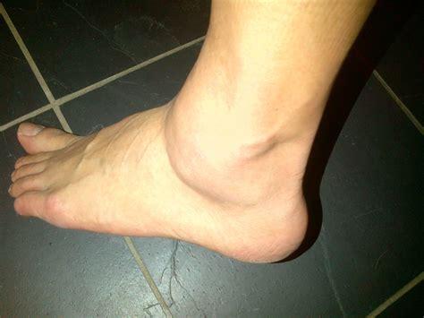 s swollen swollen ankles