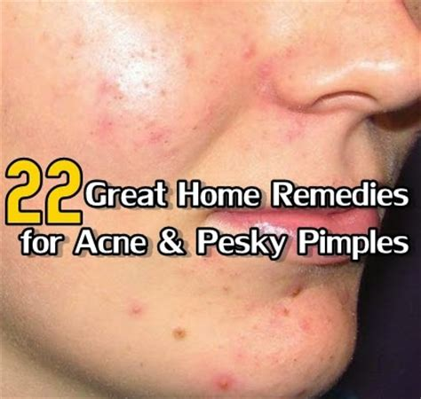 what are some really home remedies for acne acne clear