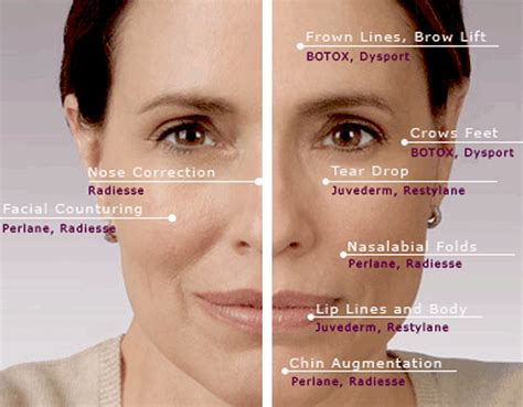 Where Your Wrinkle Filler Gets Injected Podcast by Filler In Bridge Of Nose Search Fillers