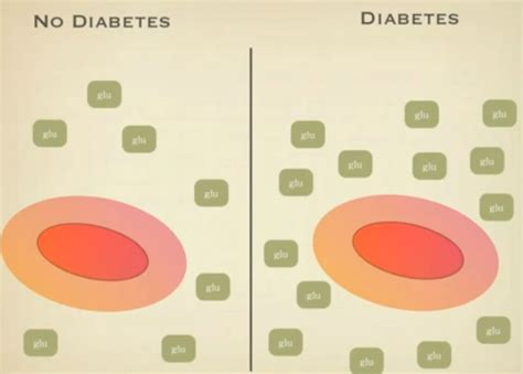 hemoglobin 1 ac results graph diabetes inc low grade squamous intraepithelial lesion lsil causes