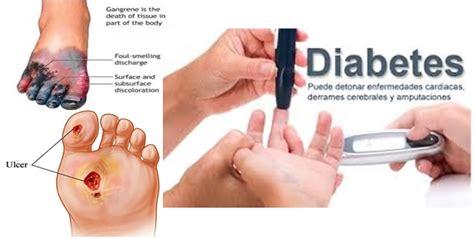 Obat Herbal Putih Diabetes obat alami penyakit diabetes melitus obat alami penyakit