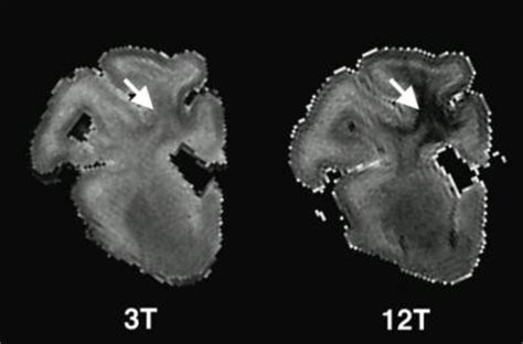 9 Tesla Mri High Field Mri Reveals Previously Undetectable Injuries In