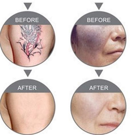 tattoo removal cream in india narben jucken salbe