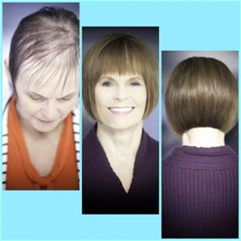 latest technology in hair regrowth new technology may restore hair loss elizabeth nicole salon