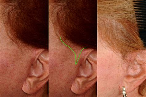 women sideburns how to fix them facelift scar repair female sideburn hair transplant dra