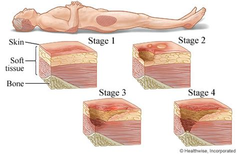 bed sore stages stages of pressure sores