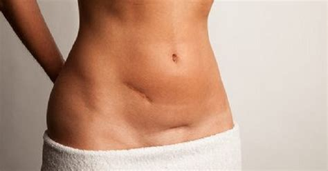 ovary pain after c section tummy tuck scar removal 4 innovative modern treatments