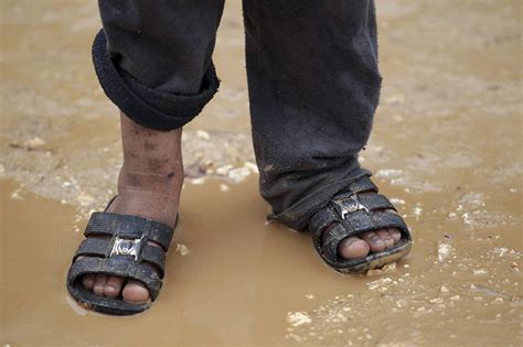 wearing slippers outside 27 heartbreaking photos of syrian children affected by the
