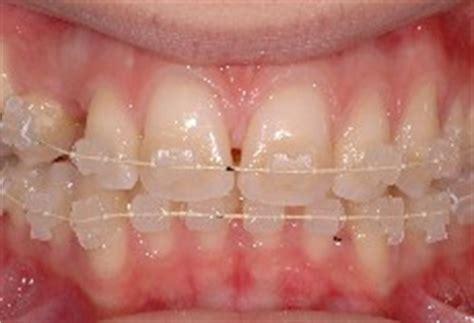 apparecchio interno fisso ortodonzia dentista castellammare dentista coccia