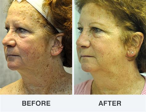 seborrheic keratosis photos soderstrom skin institute