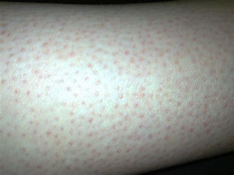 image gallery leg hair follicles