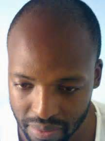 with receding hairlines how to fight a receding hairline