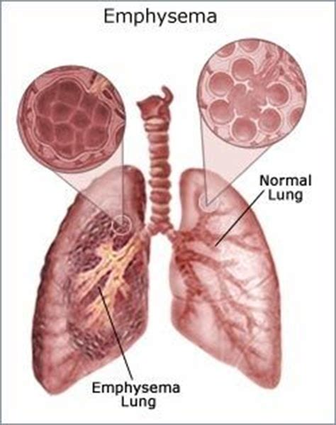 Detox Lungs Copd by 21 Best Images About Emphysema On Fibromyalgia