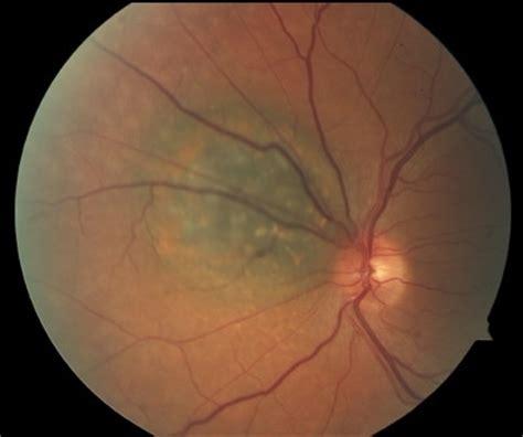 juxtapapillary choroidal melanoma with lipofuscin retina