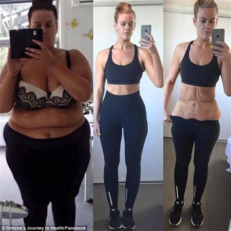 formerly obese nz woman simone anderson undergoes surgery