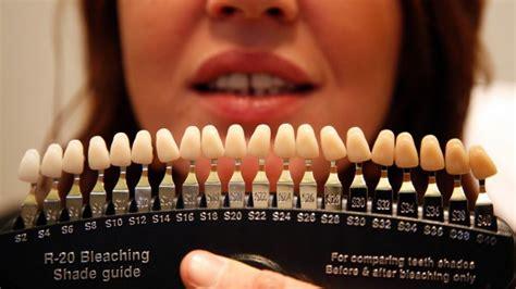 teeth color chart dental regulators work to shut teeth whitening