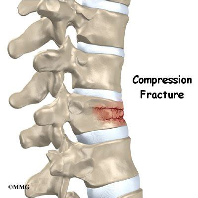 compression fracture of the spine | houston methodist