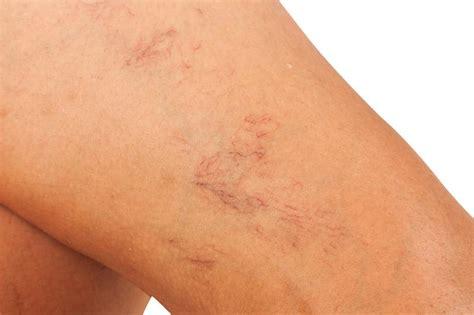 donne sedute si vedono le capillari rotti come eliminarli con il laser