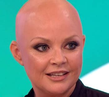 tattoo eyebrows for alopecia gail porter talks eyebrow tattoos and alopecia universalis