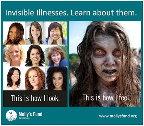 Invisible Illness Meme - invisible illness is visible just look widecurves