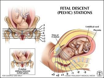 dilation effacement and station diagrams birthing station chart links for more information