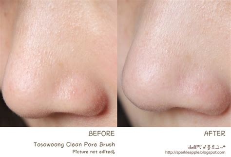Find Purify My Pores by Gallery For Gt Blackheads On Nose Before After