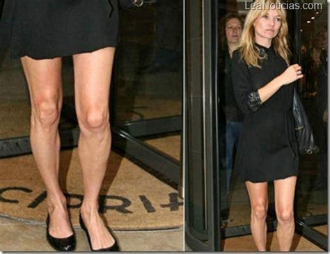 las mujeres ms feas del mundo dogguie newhairstylesformen2014com las piernas m 225 s enga 241 osas y feas de 10 bellezas