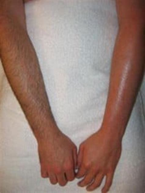 male waxing brazilian beauty before and after arm wax yelp