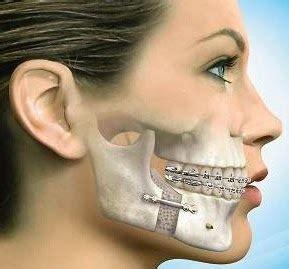 andrea janeiro problema cara equilibrium odontologia cirurgia ortogn 225 tica 233 mais