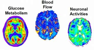 Big Data Study Discovers Earliest Sign Of Alzheimer S Big Brain Pricing