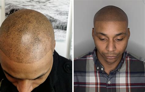 hair tattoo bald balding barber whose horrific hair described