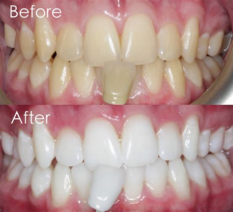 tooth color chart teeth color chart teeth whitening treatment centre for