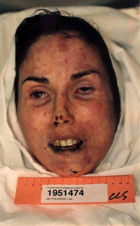 autopsies of famous people autopsy photos lisa mcpherson