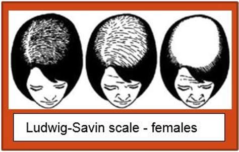 ludwig scale female androgenetic alopecia the treatment of androgenetic alopecia with lllt devices