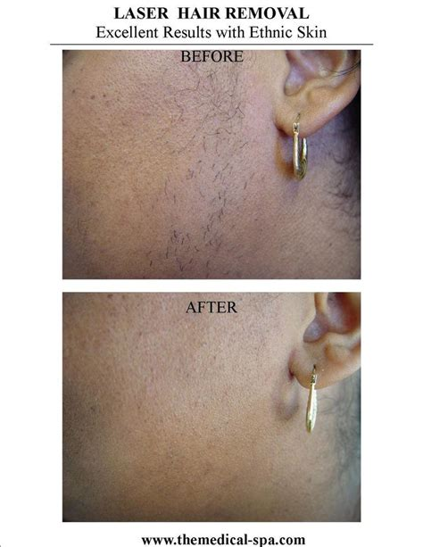 laser hair removal for african americans 1000 images about laser hair removal on pinterest laser