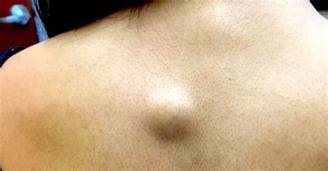 cyst on back sebaceous cyst on back images