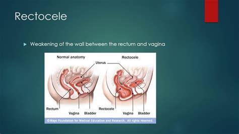 prolapsed bladder symptoms cystocele cystocele rectocele youtube